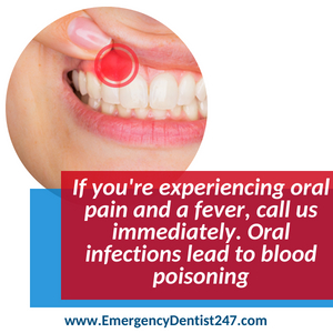 oral infections and abscessed teeth - emergency dentist in maryland