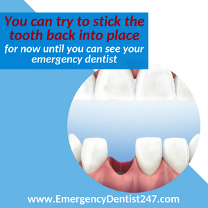 the loss of a tooth emergency dentist 247 austin