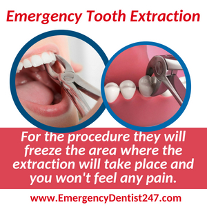 tooth extraction - dental emergency 247 san jose ca