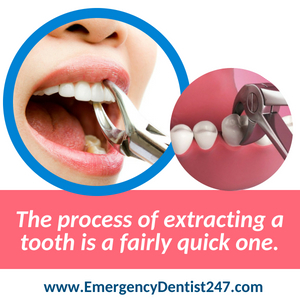 tooth extraction - emergency dentist 247 queens nyc