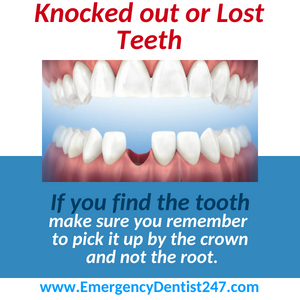 What to Do When You've Lost a Tooth