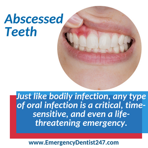 abscessed teeth oral infections seattle