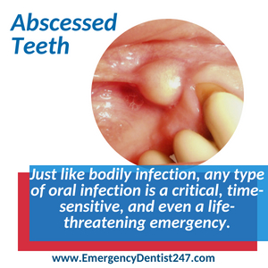 abscessed teeth oral infections