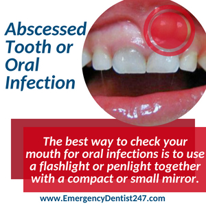 abscessed tooth and oral infection detroit