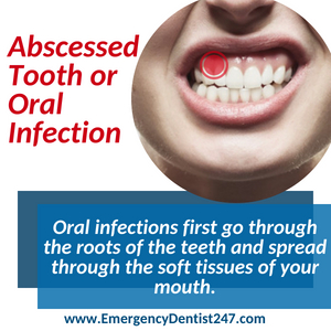 abscessed tooth and oral infections boston ma