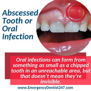 abscessed tooth and oral infections fort worth