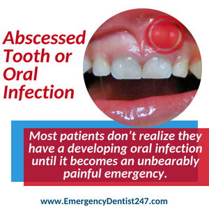 abscessed tooth and oral infections in west los angeles