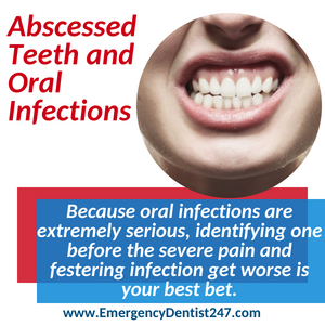 abscessed tooth and oral infections louisville