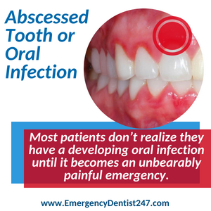 abscessed tooth and oral infections nashville
