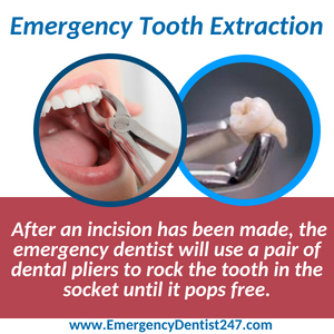 emergency tooth extraction boston
