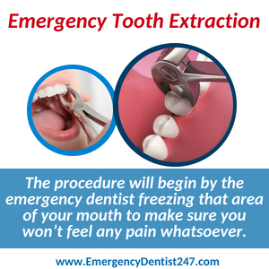 emergency tooth extraction charlotte nc