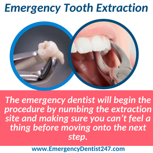 emergency tooth extraction columbus