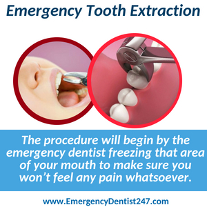 emergency tooth extraction denver