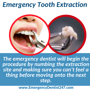 emergency tooth extraction el paso tx