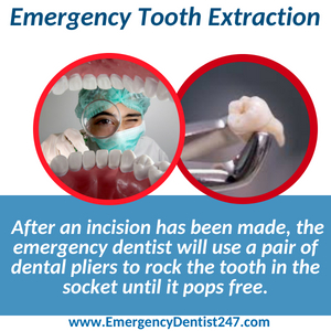 emergency tooth extraction fort worth tx