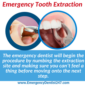 emergency tooth extraction in west los angeles