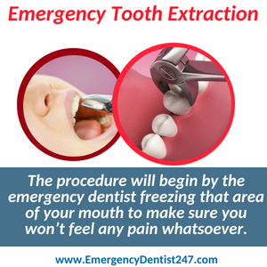 emergency tooth extraction louisville