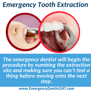 emergency tooth extraction nashville