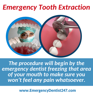 emergency tooth extraction seattle