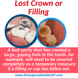 lost crown or filling denver