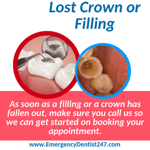 lost crown or filling hempstead ny