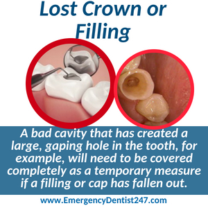 lost crown or filling nashville