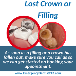 lost crown or filling seattle