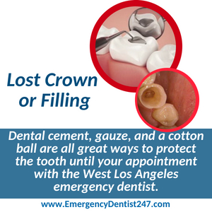 lost crown or filling west los angeles emergency dentist