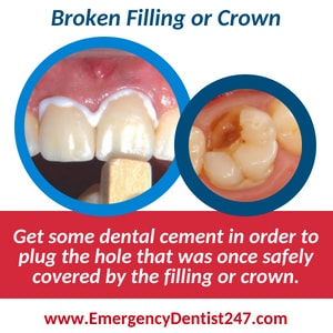broken filling or crown - dental emergency 247 dallas