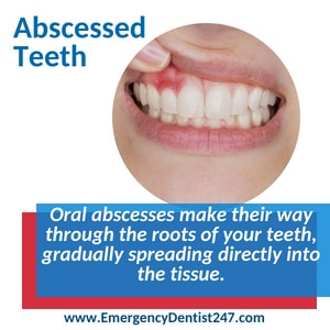 oral infections and abscessed teeth atlanta