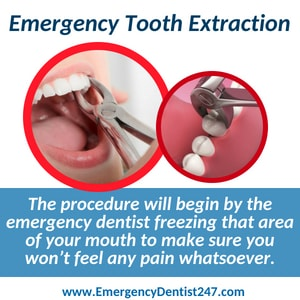emergency tooth extraction atlanta