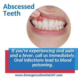 emergency dentist 247 brooklyn oral infections and abscessed teeth