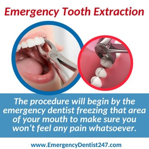 emergency dentist 247 brooklyn tooth extraction
