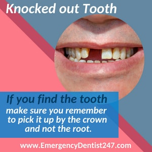emergency dentist 247 brooklyn knocked out tooth