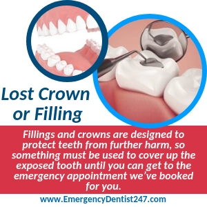 What to Do Over the Loss of a Filling or a Crown st. louis