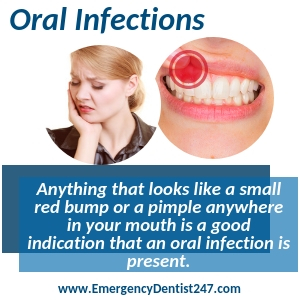 dealing with an oral infection st. louis