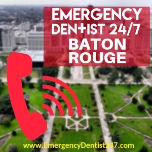 emergency room vs emergency dentist baton rouge