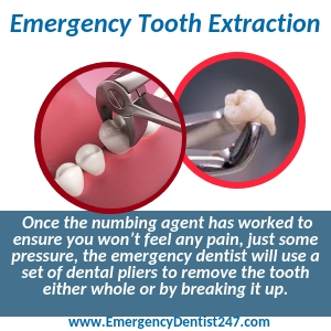emergency tooth extraction aurora