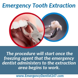 emergency tooth extraction new orleans