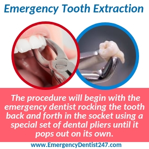 emergency tooth extraction oakland