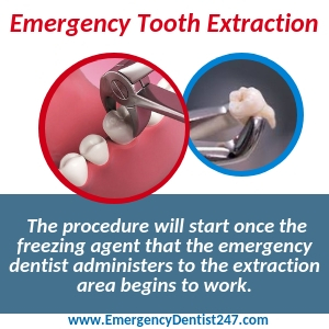 going through an emergency tooth extraction birmingham
