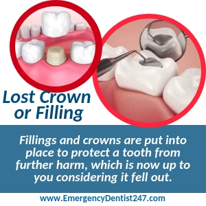 losing a crown or a filling birmingham