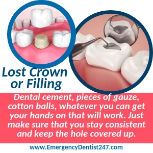 losing a filling or a crown in kansas city