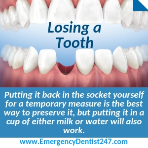 losing an adult tooth birmingham