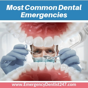 most common dental emergencies in oakland