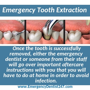 preparing for an emergency tooth extraction st. louis