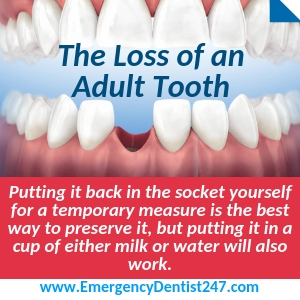 the loss of an adult tooth baton rouge