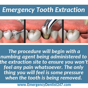 the process of an emergency tooth extraction hartford