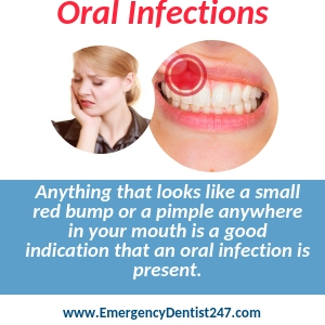 what to do when suffering with an oral infection birmingham