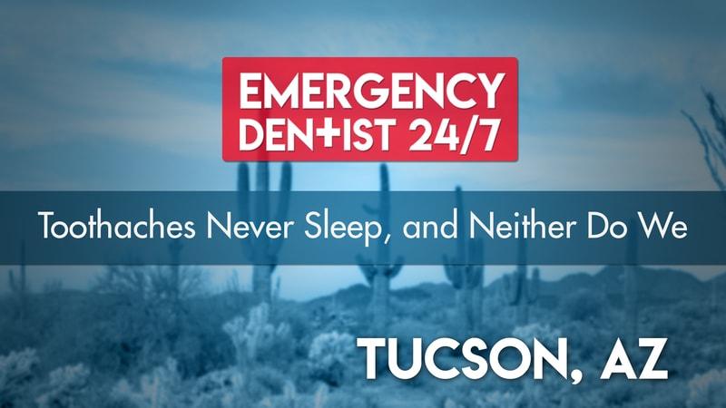 Tucson Emergency Dental 24/7 Cover